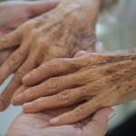 利用者の肌トラブル対策!介護士が注意したい高齢者の皮膚の乾燥