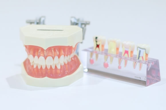 介護士による入れ歯のお手入れ方法や入れ方!義歯を使用している場合の口腔ケア